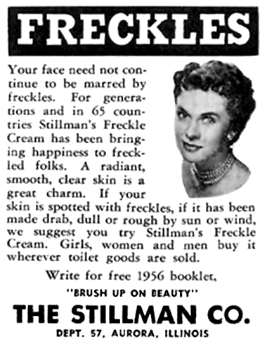 sour cream to get rid of freckles